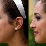 Исправление формы носа