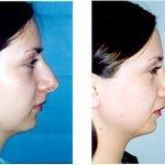 Ринопластика на уменьшение размера носа
