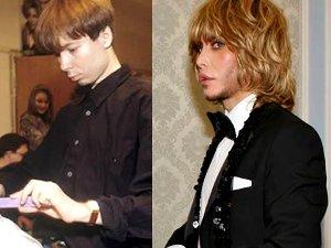 Фотография Зергея Зверева до и после пластики