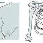 Тубулярность 1 типа