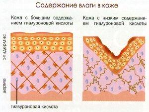 Воздействие гиалуроновой кислоты на кожу