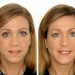 Инъекции гиалуроновой кислоты: цены на уколы, возможные осложнения и противопоказания, отзывы и фото клиентов до и после