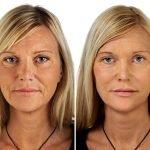Фото до и после прменениея инъекций гиалуроновой кислоты