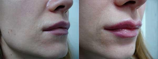 Укол в губы гиалуроновой кислотой фото