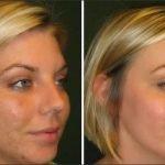 Фото до и после процедуры газожидкостного пилинга