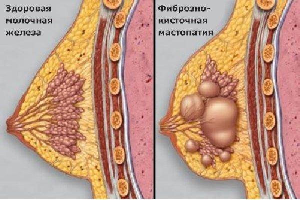 Фиброзно-кистозная мастопатия молочных желез: что это такое, причины возникновения, симптомы, а также опасность диффузной формы